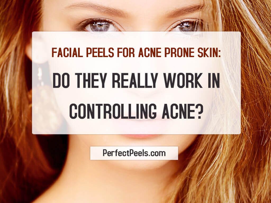 acid peels for ance
