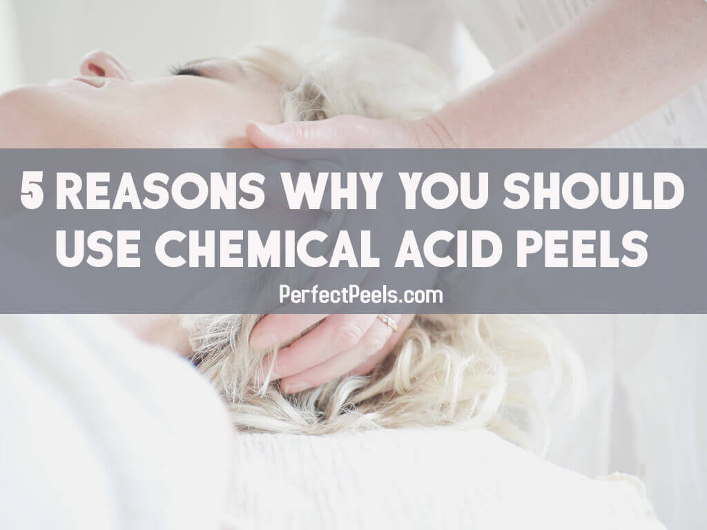 chemical acid peels