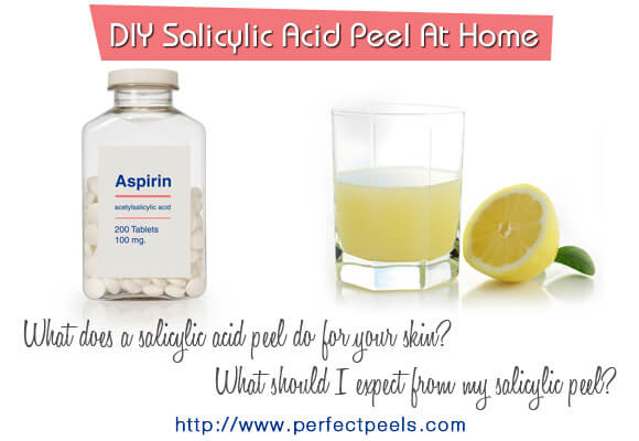 salicylic acid chemical peels
