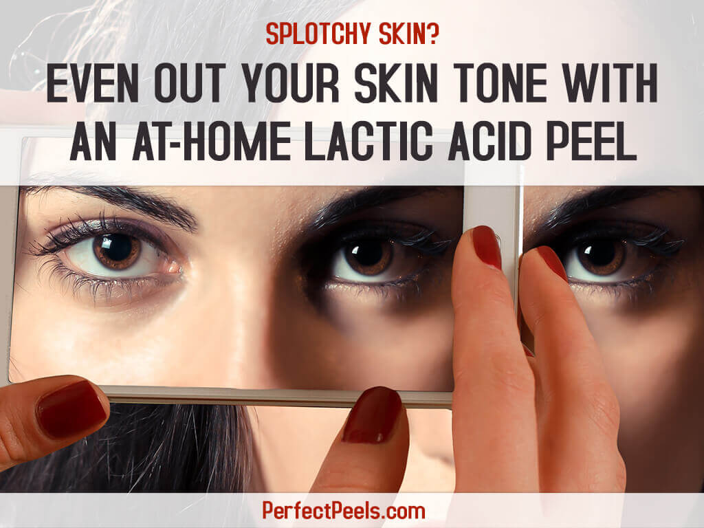 home lactic acid peel