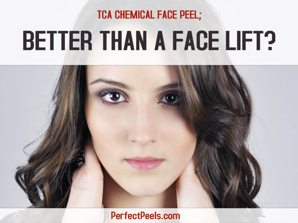 tca chemical face peel